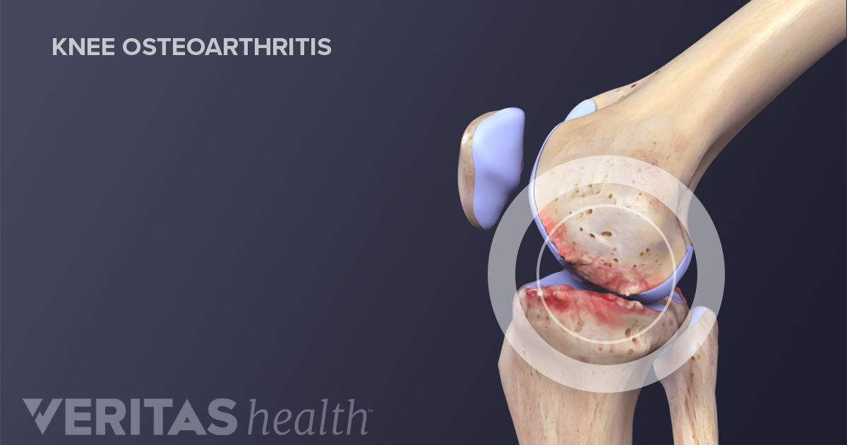 6 Types of Arthritis that Affect the Knee