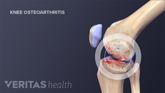 Crepitus and Arthritis