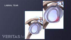 shoulder joint showing the labral tear.