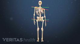 Medical illustration of a skeleton showing signs of scoliosis