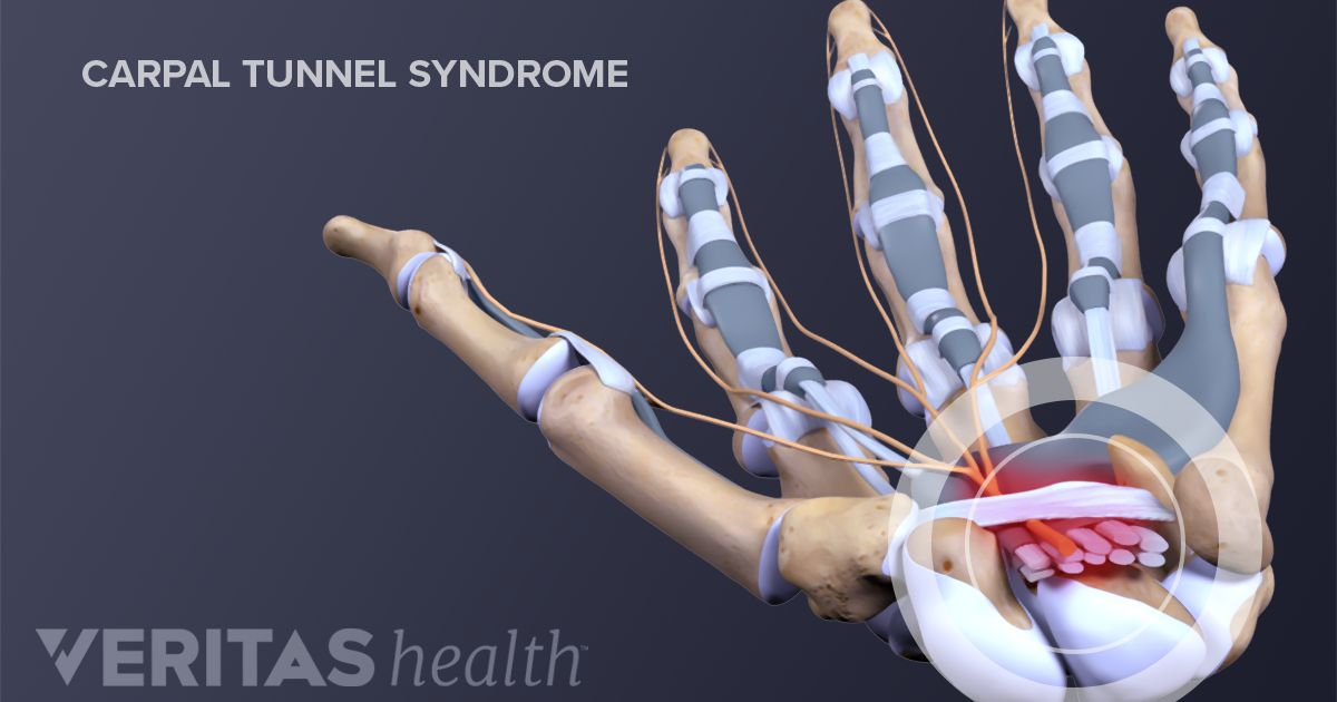 distinctive carpal tunnel syndrome symptoms, Cephalic Vein
