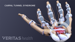 Medical illustration showing ligaments, tendons, and nerves involved in carpal tunnel syndrome