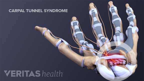 All About Carpal Tunnel Release Surgery