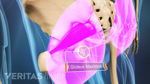 Gluteus maximus muscled highlighted