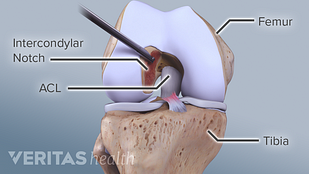 Notchplasty ACL Surgery Illustration