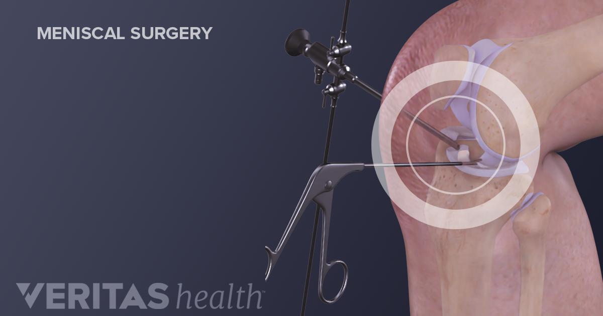 Should You Have Knee Meniscus Repair Surgery
