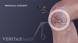 Knee surgery performed on a torn meniscus.