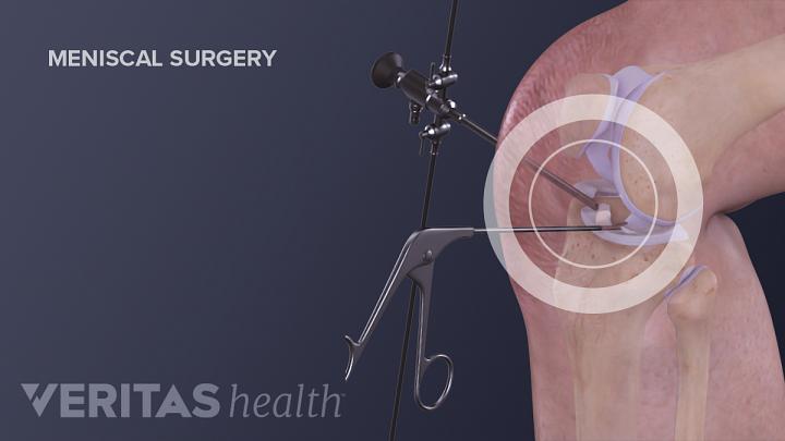 4 Factors Affecting Knee Meniscus Surgery