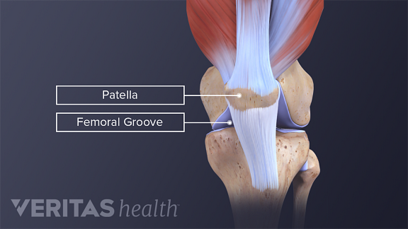 Anterior and profile view of a normal patellofemoral alignment labeling patella and femoral groove.