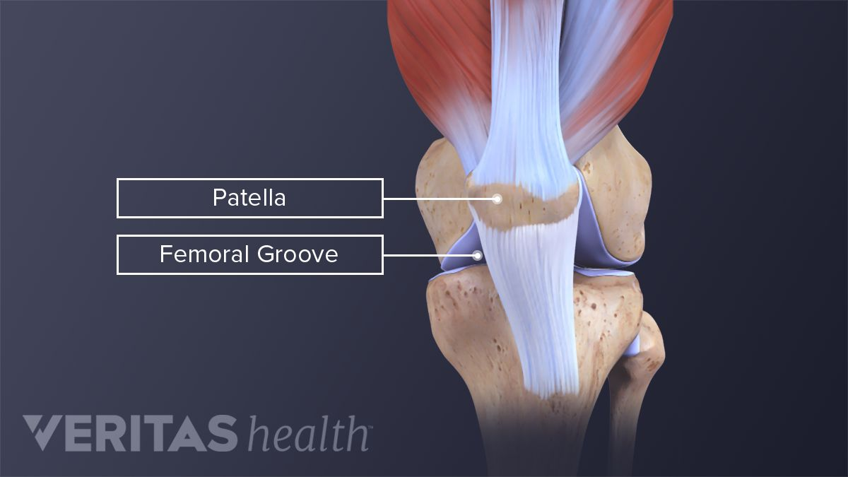 Patella and femoral groove