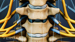 Medical illustration of two vertebrae. The disc between the vertebrae has been removed in preparation for a disc replacement