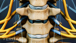 animated video still cervical disc replacement surgery