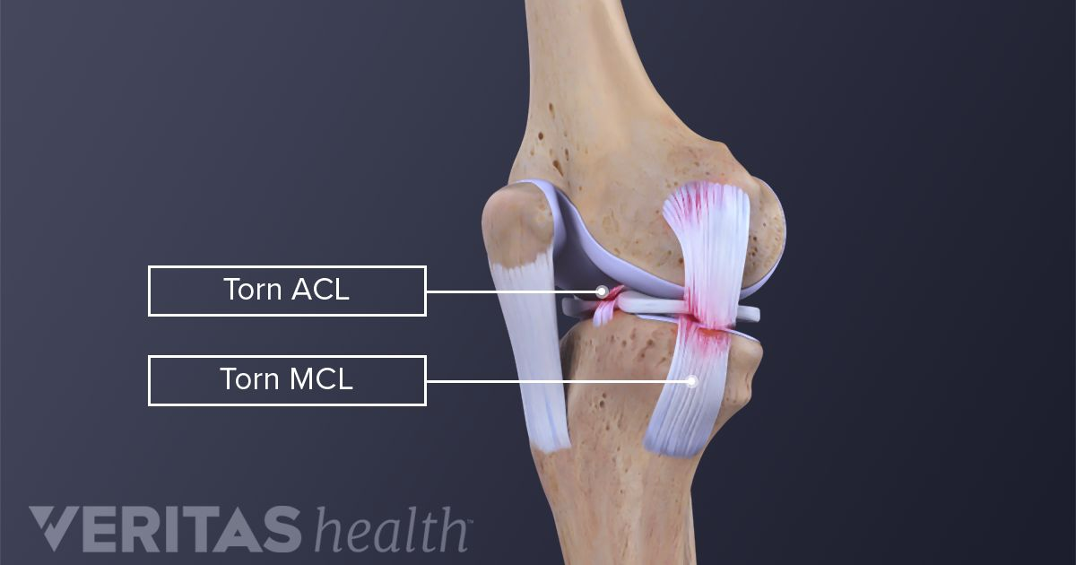 where is the mcl located in the knee