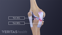 Anterior view of a torn MCL and ACL in the knee joint