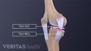 Torn MCL and ACL