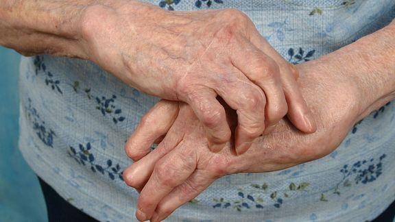 Arthritic hands massaging one another.