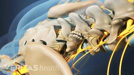 Medical illustration of the lower spine, showing bone spurs on the facet joints