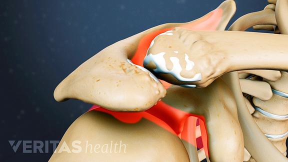 Acromioclavicular (AC) Joint Osteoarthritis Video