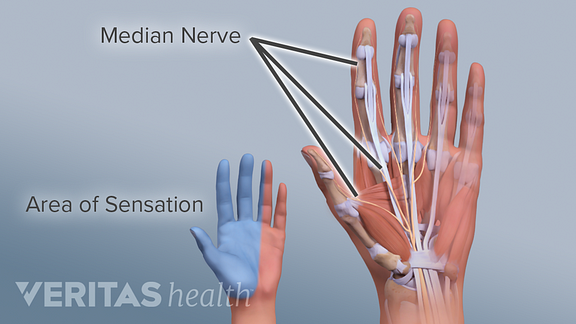 Palmar view of the hand showing areas of sensation caused by the median nerve.