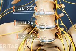 Lumbar spinal discs