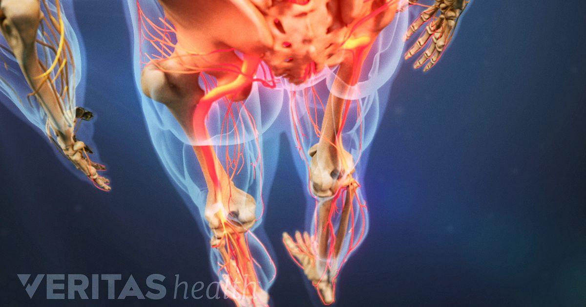 Understanding Neuropathy Symptoms