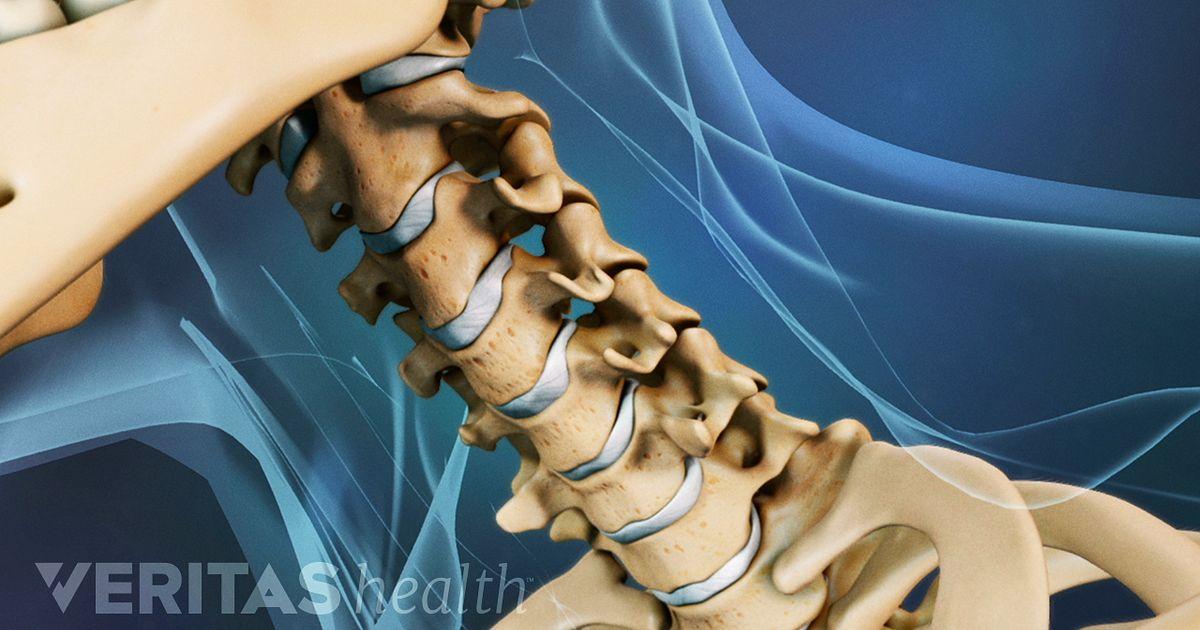 Dolor de cuello crónico: ¿qué afección está causando mi dolor de cuello?