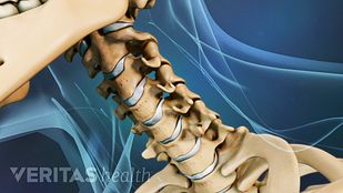 dolor cuello nuca lado derecho