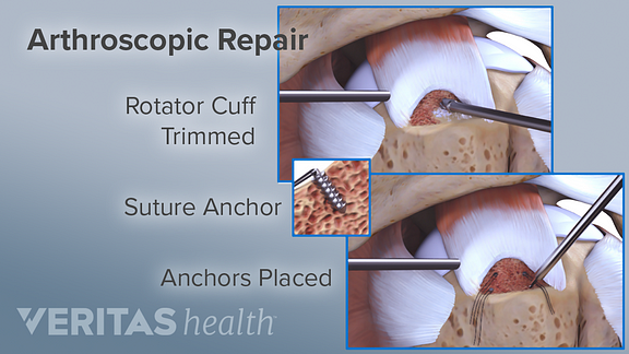 arthroscopic repair for rotator cuff