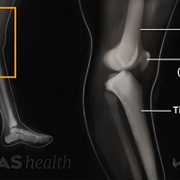 Knee hyperextension x-ray labeling the femur, patella, and tibia