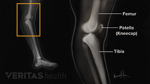 Medical illustration of knee hyperextension x-ray