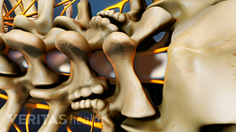 Spinal stenosis in the lumbar spine