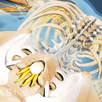 Posterior view of the spine highlighting ankylosing spondylitis in the lumbar spine.