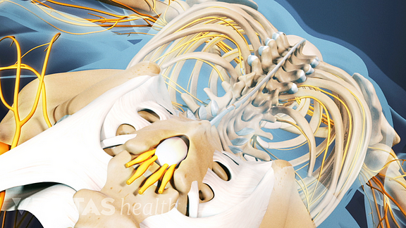Many people find relief from ankylosing spondylitis symptoms by sleeping on their back.