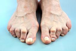 foot rheumatoid arthritis