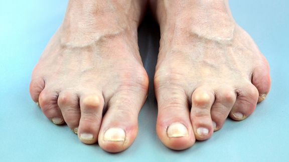 Foot Problems Rheumatoid Arthritis