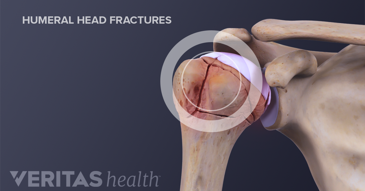 The 3 Types Of Shoulder Fractures