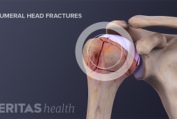 A proximal humerus fracture is a fracture to top of the humerus bone.