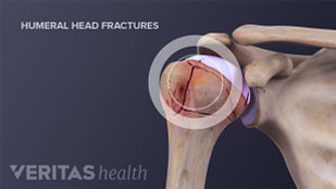 Humeral head fractures in the shoulder