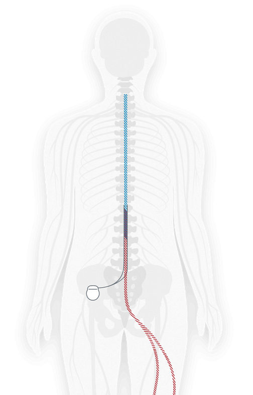 Illustration showing where a spinal cord stimulator is implanted in the body and attached to nerves near the spine to send pulses to the nerves to relieve pain.