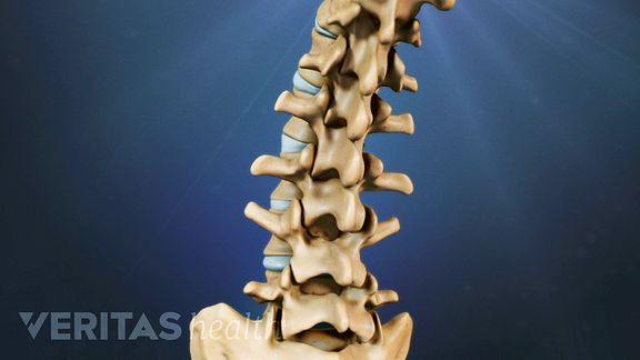 Back and Neck Pain Myths