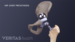 Medical illustration of the hip joint prosthesis assembly