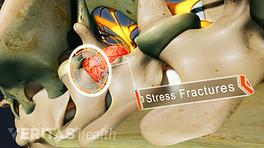 Stress fracture in a vertebrae