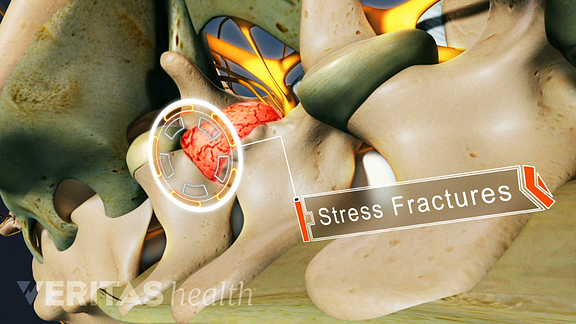 A close up view of a stress fracture of a vertebrae of the spine.