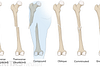 Medical illustration of the different types of fractures illustrated along the femur