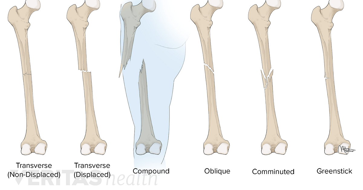 Bone Break Vs Fracture