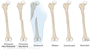 Different types of fractures illustrated along the femur