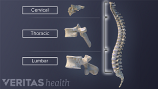 cervical, thoracic and lumbar spinal discs in the spinal column