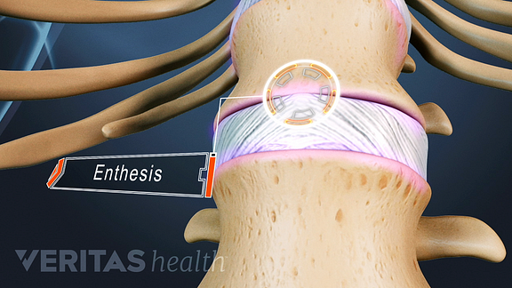 A close up view of an illustrated spine showing two vertebrae and a disc. The connection point between them is called the entheses and it is labeled.