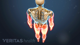 Posterior view of the body showing pain in the arms and legs.