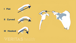 Different shapes of the shoulder acromion: flat, curved, and hooked